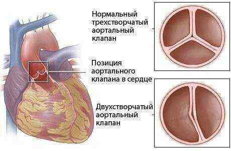 врожденные пороки сердца у детей причины