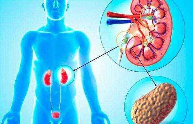 почечная колика симптомы у мужчин лечение